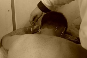 acupuncture on shoulders
