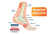causes of plantar fasciitis featured