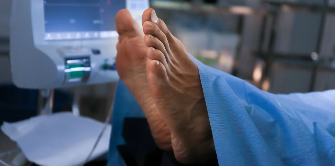 plantar fasciitis surgery featured
